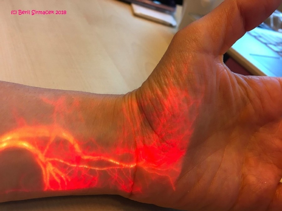Figure 1. Augmented reality visualization of blood flow in the wrist and hand.