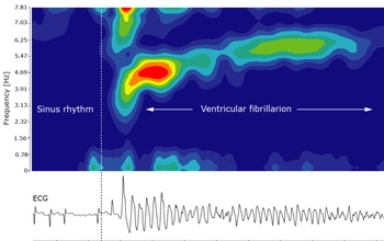 Figure 4.  Time-frequency analysis of ventricular fibrillation.  Frequency peaks in the range of 3-6Hz indicate fibrillation or flutter.