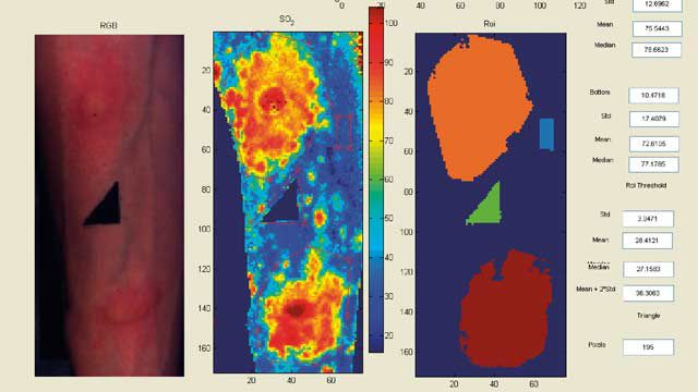 Hyperspectral  images from The University of Nottingham, derived by shining light on the tissue surface and accurately measuring oxygen levels and generating oxygen saturation maps to facilitate the work of clinical researchers and doctors.