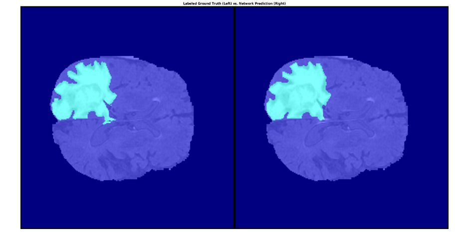 Segmented tumor in brain tissue using MATLAB with labeled ground truth (left) and network prediction (right).