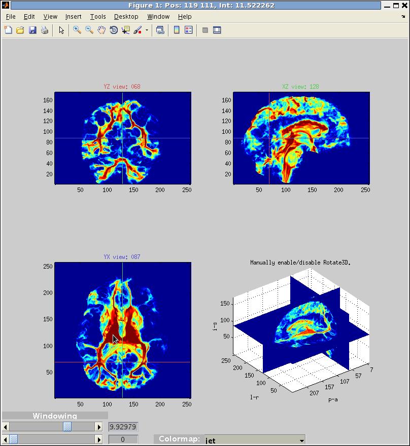 3D Volume Visualization - File Exchange - MATLAB Central