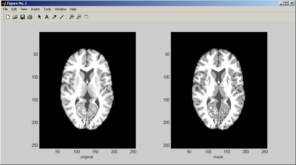 kmeans image segmentation - File Exchange - MATLAB Central