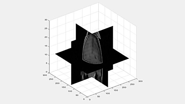 Viewing a 3D volume as 2D slices.